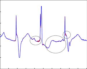ECG signal characterization using Lagrange-Chebyshev