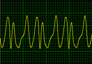 "Oscillogram of autodyne signal obtained using a standard ""Tigel-08M"" module"