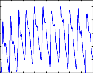 Fragment of pulse-wave signal with characteristic low-frequency distortions